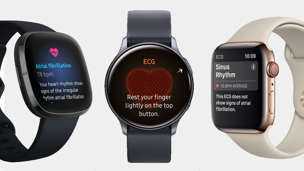 ECG smartwatches: How they work and the best on the market